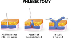 ambulatory-phlebectomy-varicose-info-02