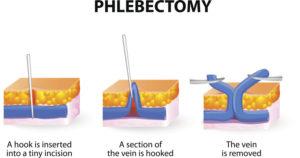 ambulatory-phlebectomy-varicose-info-02