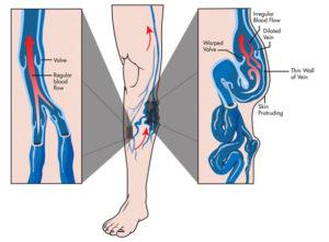 varicose phlebectomy