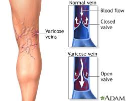 causes-of-varicose-veins-top-nyc-specialist-surgeon-01