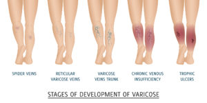stages-of-varicose-vein-development-increased-risks-03