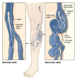 what-are-varicose-veins-info-top-nyc-dr-specialist-01