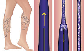 sclerotherapy-for-spider-veins-top-nyc-specialisy-surgeon-01