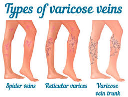 types-of-varicose-veins-spider-veins-surgeon-03