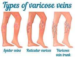 types-of-varicose-veins-spider-veins-surgeon-03