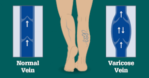 treatment-options-varicose-veins-nyc-top-vein-surgeon-02
