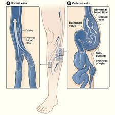 varicose-veins-general-medical-information-01