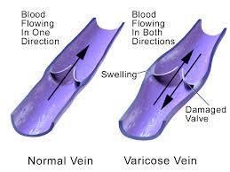 nyc-surgeon-fix-vein-issues-02