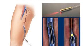 top-endovenous-laser-ablation-specialist-nyc-01
