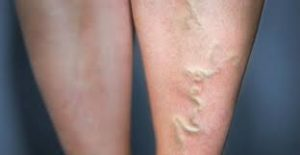 varicose-veins-causes-and-treatment-01