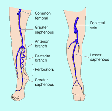 venous-leg-ulcer-illustration-02