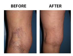 spider-varicose-vein-treatment-before-after-vein-gogh-03