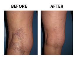 spider-varicose-vein-treatment-before-after-vein-gogh-03