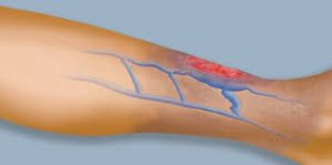 Venous Leg Ulcers - Causes & treatment NYC