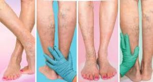 Vascular Doctor for Varicose Vein Treatments NYC