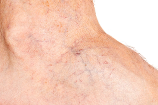 Causes of spider veins